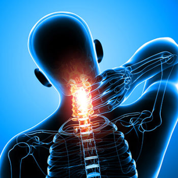 Auto Accident Chiropractor in Bergenfield, NJ